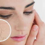 Top Beauty Tips To Handle Your Dry Skin Well