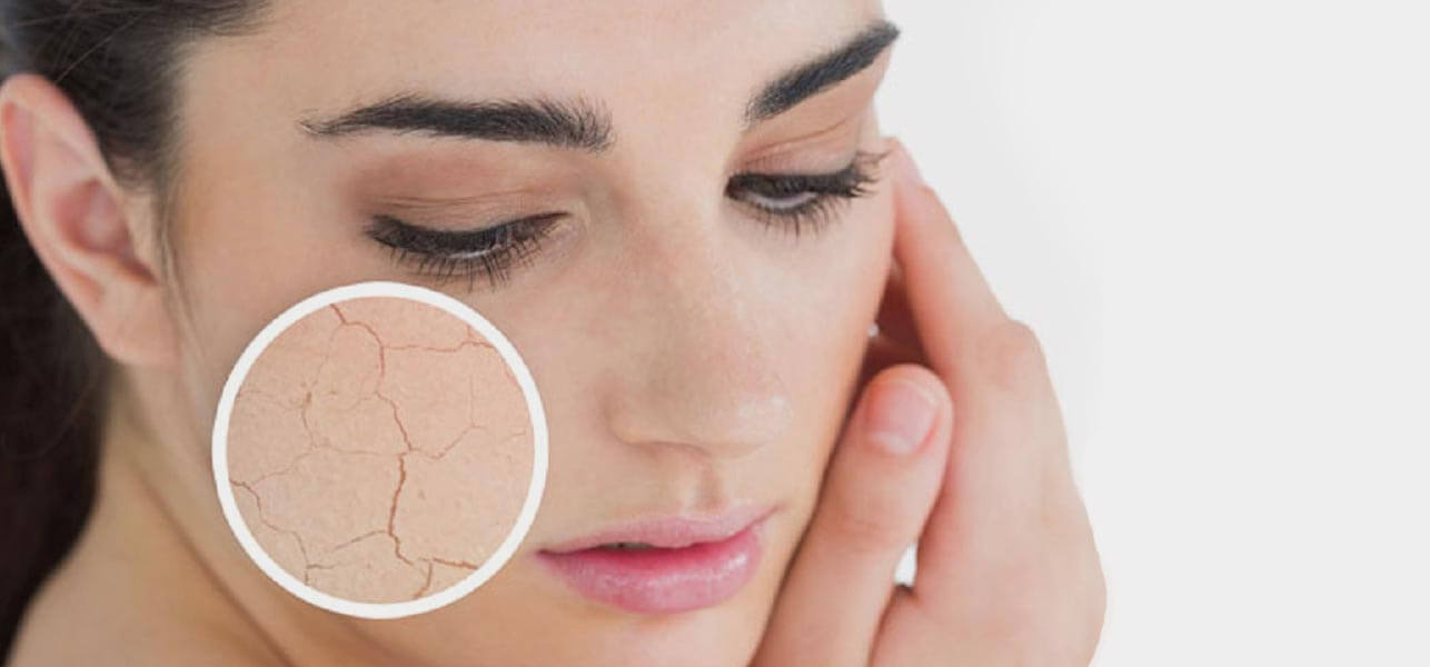 DRY SKIN ALERT !!! Top Beauty Tips To Handle Your Dry Skin Well